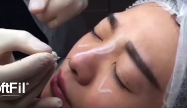 SoftFil HA cannula injection Nose injection