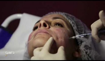 SoftFil® HA cannula injection One point technique Deep point