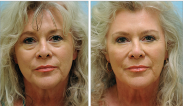 Periorbital and Midfacial Volume Enhancement With Cannula