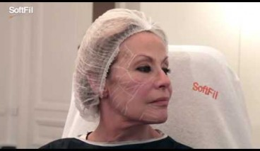 The Soft Filling Technique by Sandrine Sebban, MD Paris, France with SoftFil cannulas