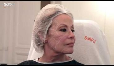 La Soft Filling Technique par Dr Sandrine Sebban, Paris, France avec des canules SoftFil