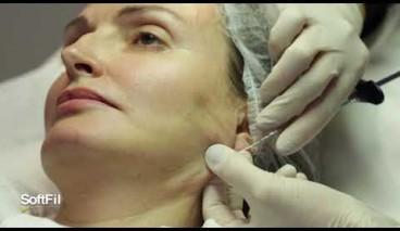 SoftFil injection d'AH à la canule : injection du contour du visage et du cou
