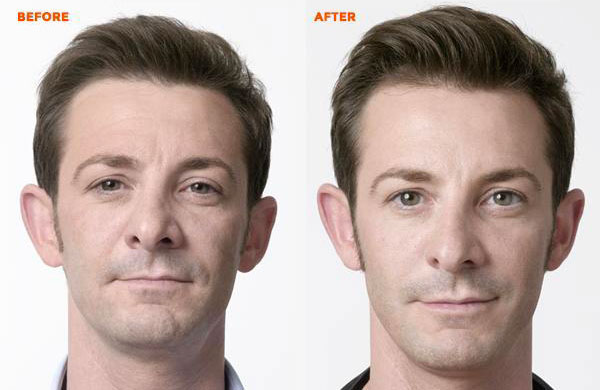 before-after4