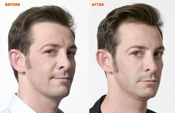 before-after4b